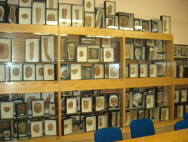 Sbírka muláží Dermatovenerologické kliniky 1. LF UK a VFN uložená ve výukových prostorách kliniky